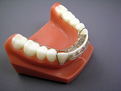 Spring Retainer W-Wire Extensions