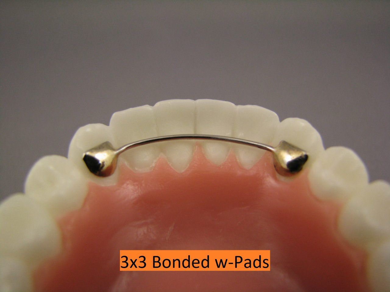 Lingual Arch 3x3 Bonded W-Pads